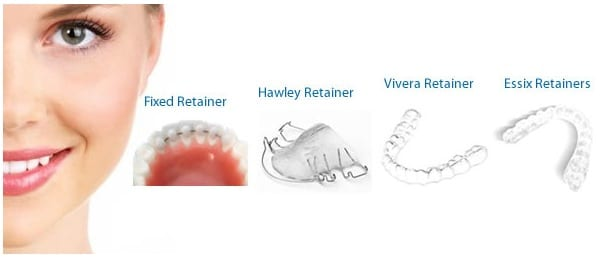 Retainers and Their Costs | Invisalign and Braces in Orange