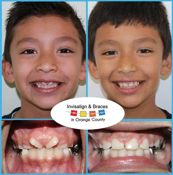 Dante Before and After Invisalign Treatment