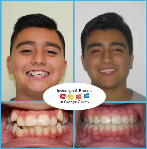 John Before and After Invisalign Treatment