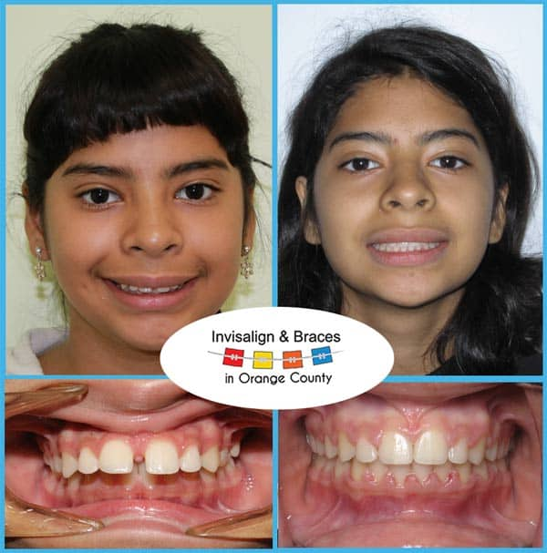 Jollie Before and After Invisalign Treatment