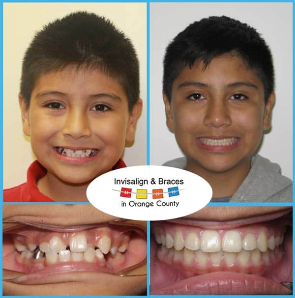Julian Before and After Invisalign Treatment