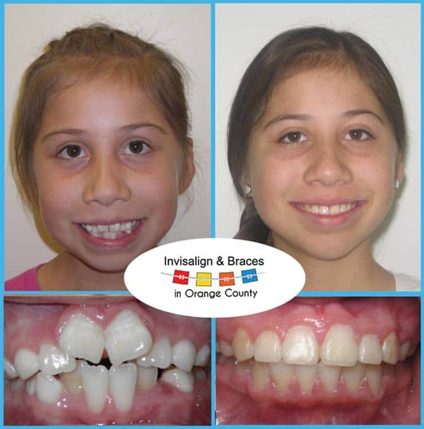 Karina Before and After Invisalign Treatment