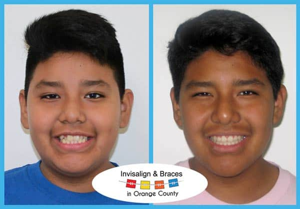 Luis Before and After Invisalign Treatment